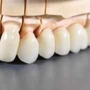 Brzydki kształt zęba