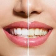 Wybielanie zębów w gabinecie stomatologpolna20.pl